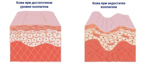 Недостаток коллагена в коже вызывает морщины